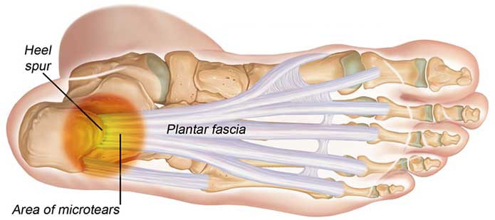 diagram showing the anatomy of plantar fascia