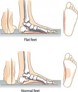 flat feet vs normal feet