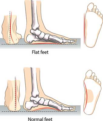 Flat Feet Vs Normal The