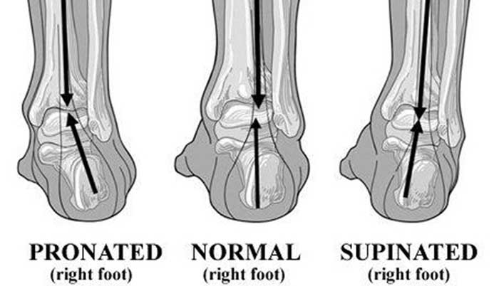 foot-pronation-chart