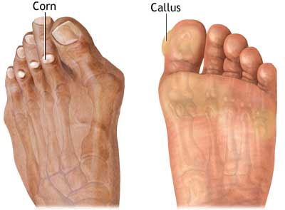 illustration of foot corn and callus