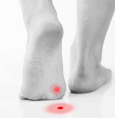 plantar fasciitis wart on foot