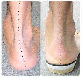 flat feet vs flat feet with insoles