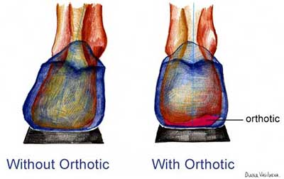 Without Orthotic With Orthotic