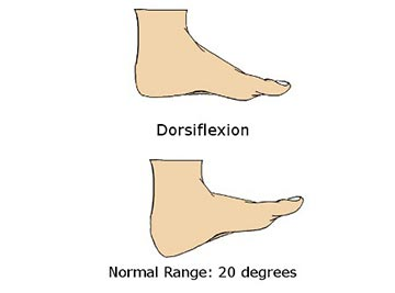 Illustration of normal ankle dorsiflexion