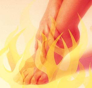foot on fire from plantar fasciitis