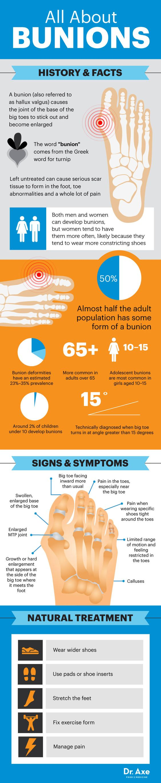 All About Bunions Infograph