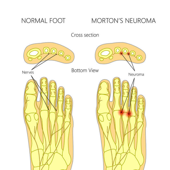 normal foot vs mortons neuroma