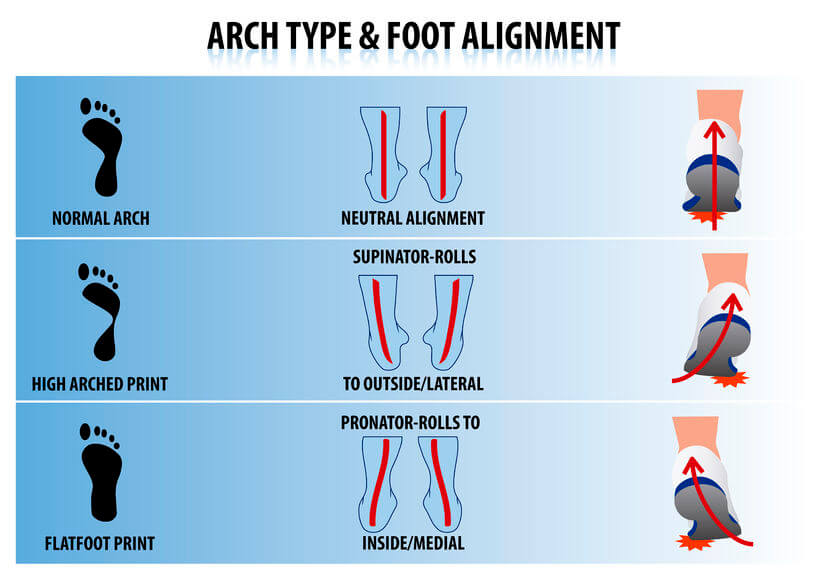 Arch Type Foot Alignment